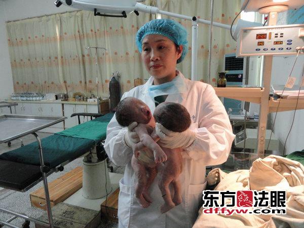 5月19日中午,在江苏响水县第三人民医院妇产科内,一名23岁孕妇剖腹产下一对罕见的双胞胎连体男婴。目前,连体男婴身体状况尚属稳定。   当天下午,记者在该院采访时了解到,产妇张某系四川人,常年在外地打工,怀孕足月后回到丈夫家乡响水,在该县第三人民医院妇产科剖腹产下一对罕见的双胞胎连体男婴,经过医院初步检查,连体男婴共重4000克,两胎儿为单卵双胎,胸腹处相连。   据响水县第三人民医院妇产科主任毛宝红介绍说:今天中午我们医院来了一位孕妇,她术前诊断为足月连体双胎,术前经过我们的周密安排,在医务人员的共